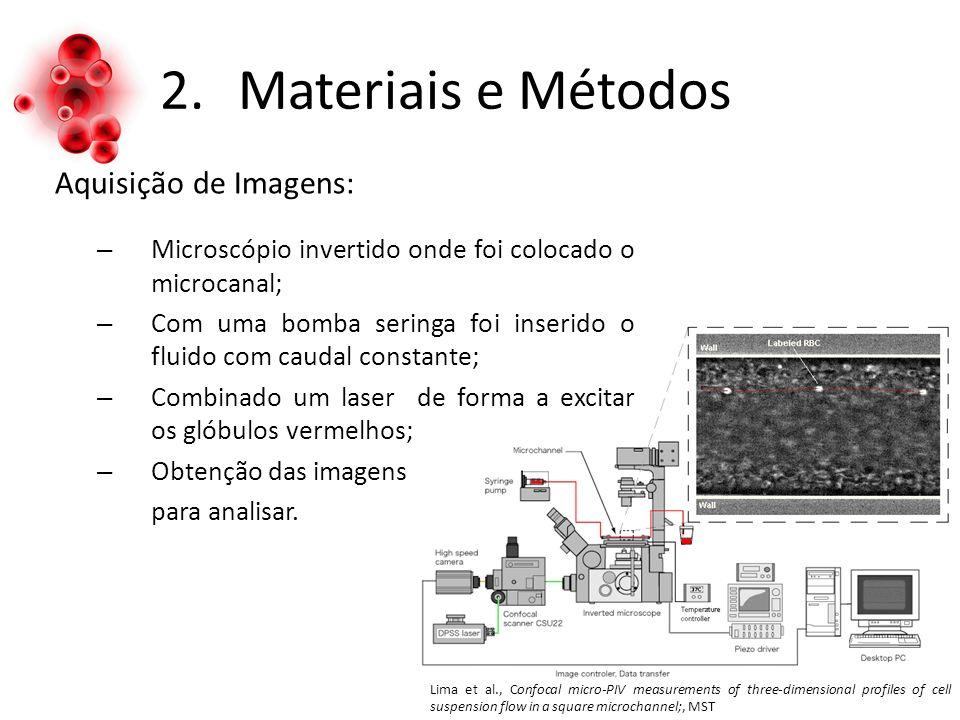 2.Materiais e Métodos Aquisição de Imagens: – Microscópio invertido onde foi colocado o microcanal; – Com uma bomba seringa foi inserido o fluido com caudal constante; – Combinado um laser de forma a excitar os glóbulos vermelhos; – Obtenção das imagens para analisar.