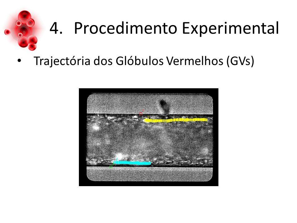 4.Procedimento Experimental Trajectória dos Glóbulos Vermelhos (GVs)