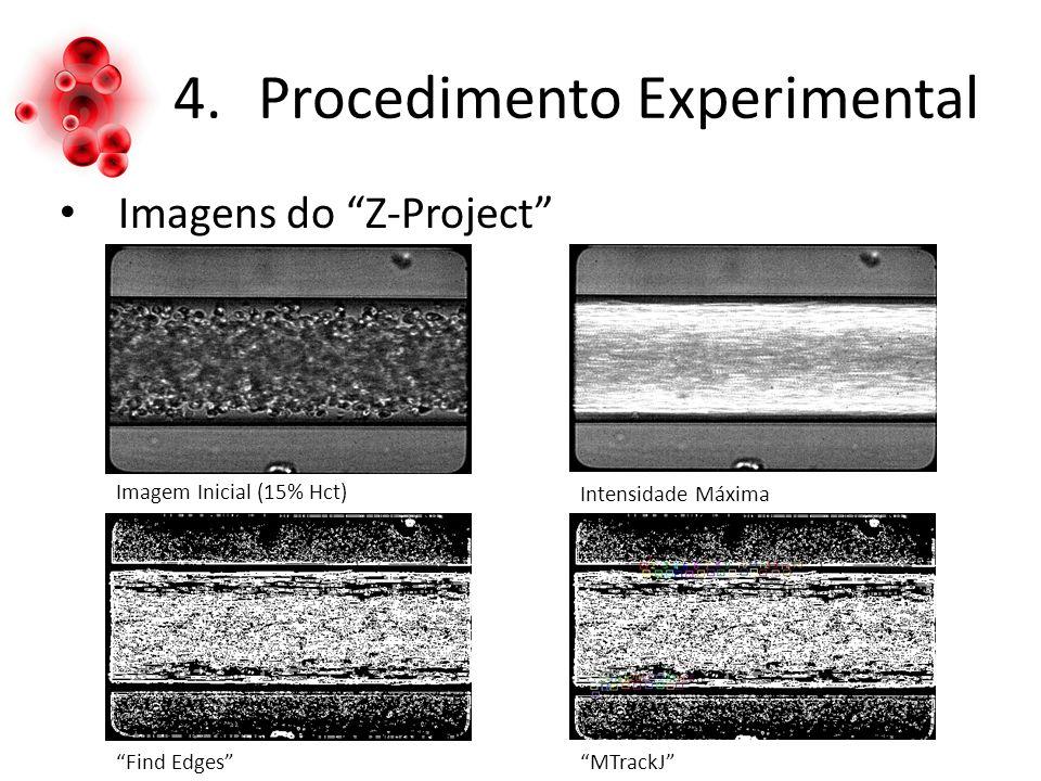 4.Procedimento Experimental Imagens do Z-Project Imagem Inicial (15% Hct) Intensidade Máxima Find EdgesMTrackJ