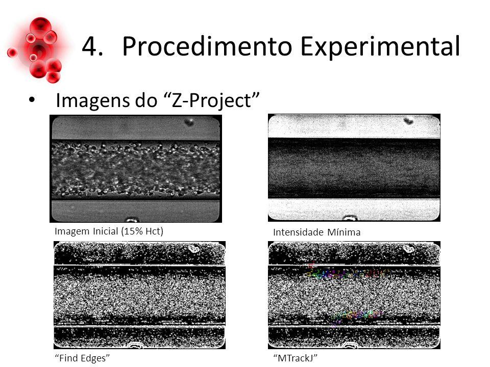 4.Procedimento Experimental Imagens do Z-Project Imagem Inicial (15% Hct) Intensidade Mínima Find EdgesMTrackJ
