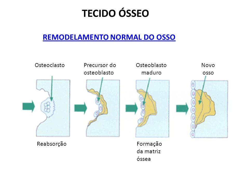 TECIDO ÓSSEO REMODELAMENTO NORMAL DO OSSO Osteoclasto Reabsorção Precursor do osteoblasto Osteoblasto maduro Formação da matriz óssea Novo osso