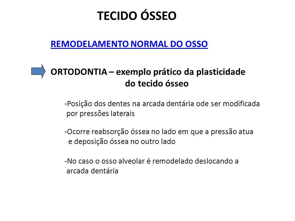 TECIDO ÓSSEO REMODELAMENTO NORMAL DO OSSO ORTODONTIA – exemplo prático da plasticidade do tecido ósseo -Posição dos dentes na arcada dentária ode ser