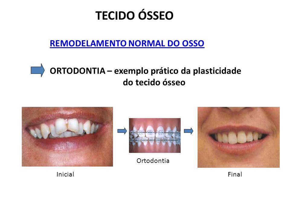 TECIDO ÓSSEO REMODELAMENTO NORMAL DO OSSO ORTODONTIA – exemplo prático da plasticidade do tecido ósseo InicialFinal Ortodontia