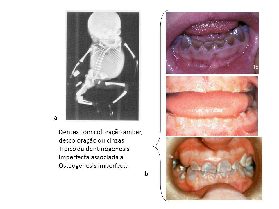 Dentes com coloração ambar, descoloração ou cinzas Tipico da dentinogenesis imperfecta associada a Osteogenesis imperfecta a b