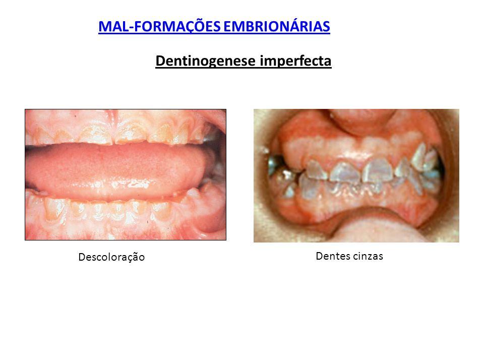 MAL-FORMAÇÕES EMBRIONÁRIAS Dentinogenese imperfecta Descoloração Dentes cinzas