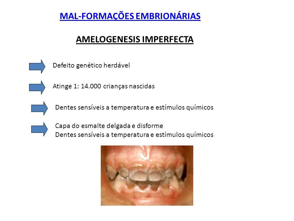 MAL-FORMAÇÕES EMBRIONÁRIAS AMELOGENESIS IMPERFECTA Defeito genético herdável Atinge 1: 14.000 crianças nascidas Dentes sensíveis a temperatura e estím