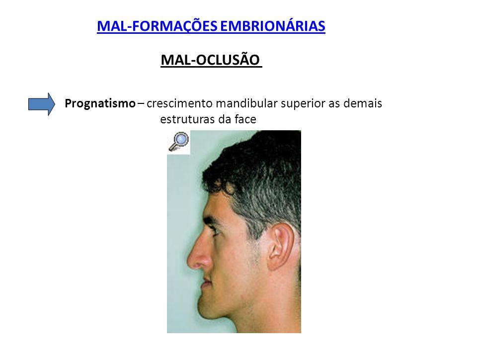 MAL-FORMAÇÕES EMBRIONÁRIAS MAL-OCLUSÃO Prognatismo – crescimento mandibular superior as demais estruturas da face