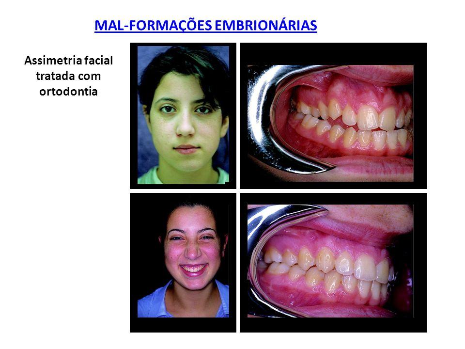 MAL-FORMAÇÕES EMBRIONÁRIAS Assimetria facial tratada com ortodontia