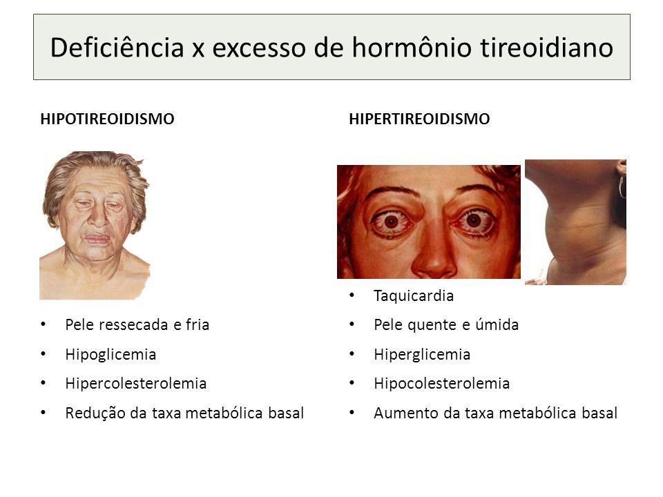 HIPOTIREOIDISMO Bradicardia Pele ressecada e fria Hipoglicemia Hipercolesterolemia Redução da taxa metabólica basal HIPERTIREOIDISMO Taquicardia Pele quente e úmida Hiperglicemia Hipocolesterolemia Aumento da taxa metabólica basal Deficiência x excesso de hormônio tireoidiano