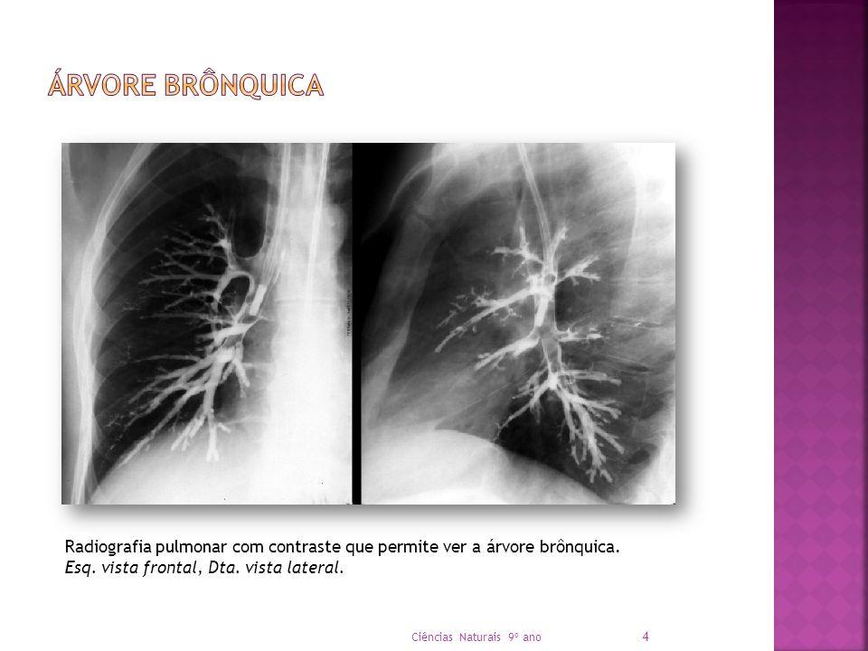 Radiografia pulmonar com contraste que permite ver a árvore brônquica. Esq. vista frontal, Dta. vista lateral. Ciências Naturais 9º ano 4