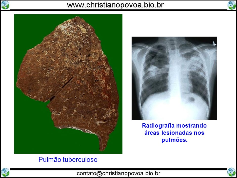 Radiografia mostrando áreas lesionadas nos pulmões. Pulmão tuberculoso