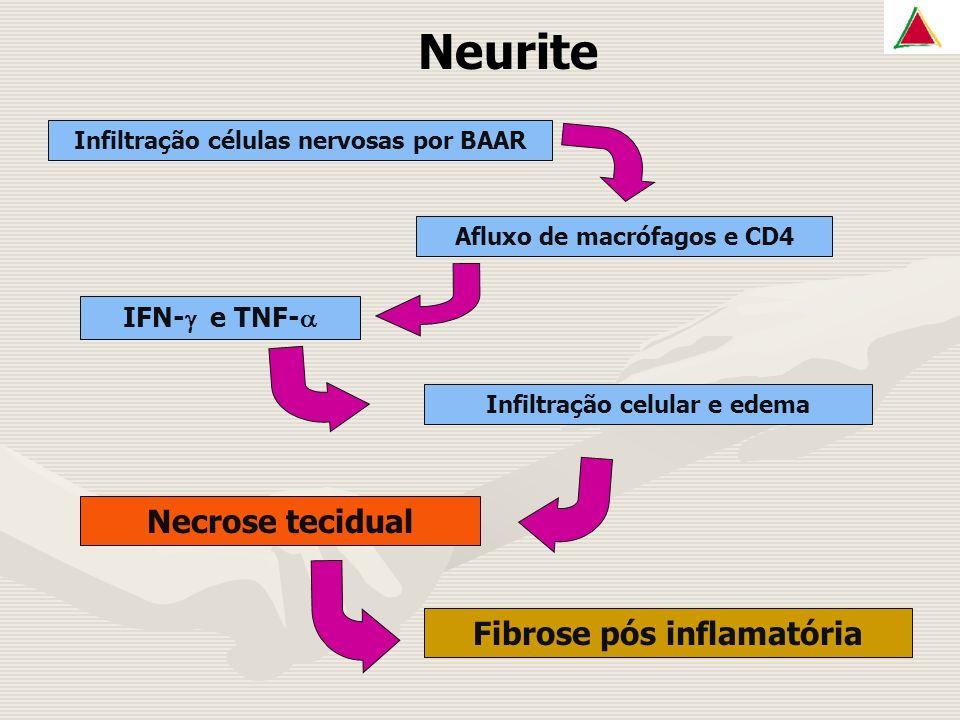 Neurite Infiltração células nervosas por BAAR Afluxo de macrófagos e CD4 IFN- e TNF- Infiltração celular e edema Necrose tecidual Fibrose pós inflamatória