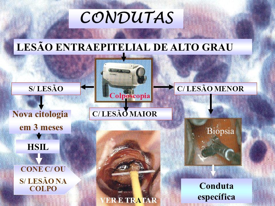S/ LESÃO C/ LESÃO MAIOR C/ LESÃO MENOR Nova citologia em 3 meses CONE C/ OU S/ LESÃO NA COLPO Conduta específica CONDUTAS LESÃO ENTRAEPITELIAL DE ALTO GRAU Biopsia Colposcopia VER E TRATAR HSIL