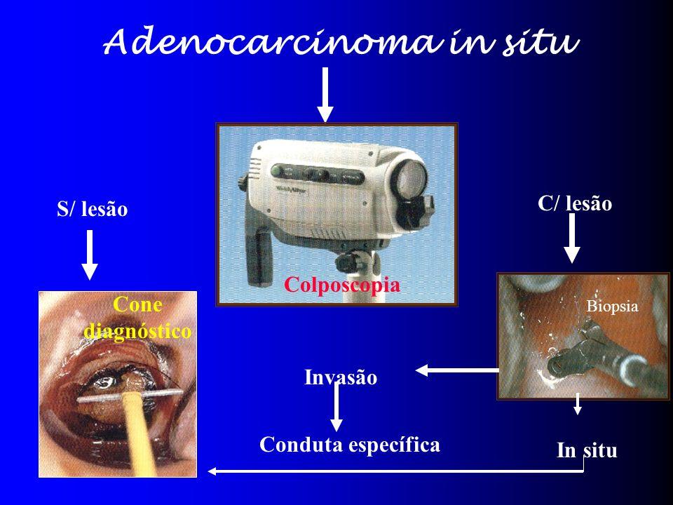 Adenocarcinoma in situ Colposcopia S/ lesão C/ lesão Cone diagnóstico Biopsia Invasão Conduta específica In situ