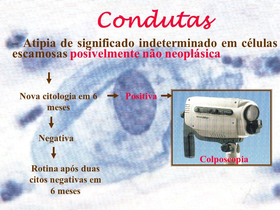 – Atipia de significado indeterminado em células escamosas posivelmente não neoplásica Condutas Nova citologia em 6 meses Negativa Rotina após duas ci