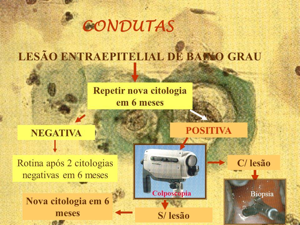 CONDUTAS LESÃO ENTRAEPITELIAL DE BAIXO GRAU NEGATIVA Repetir nova citologia em 6 meses Rotina após 2 citologias negativas em 6 meses POSITIVA S/ lesão