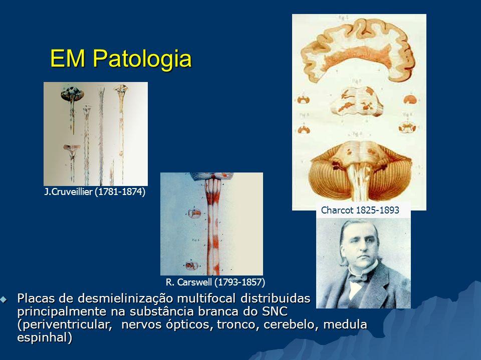 EM Patologia Placas de desmielinização multifocal distribuidas principalmente na substância branca do SNC (periventricular, nervos ópticos, tronco, ce
