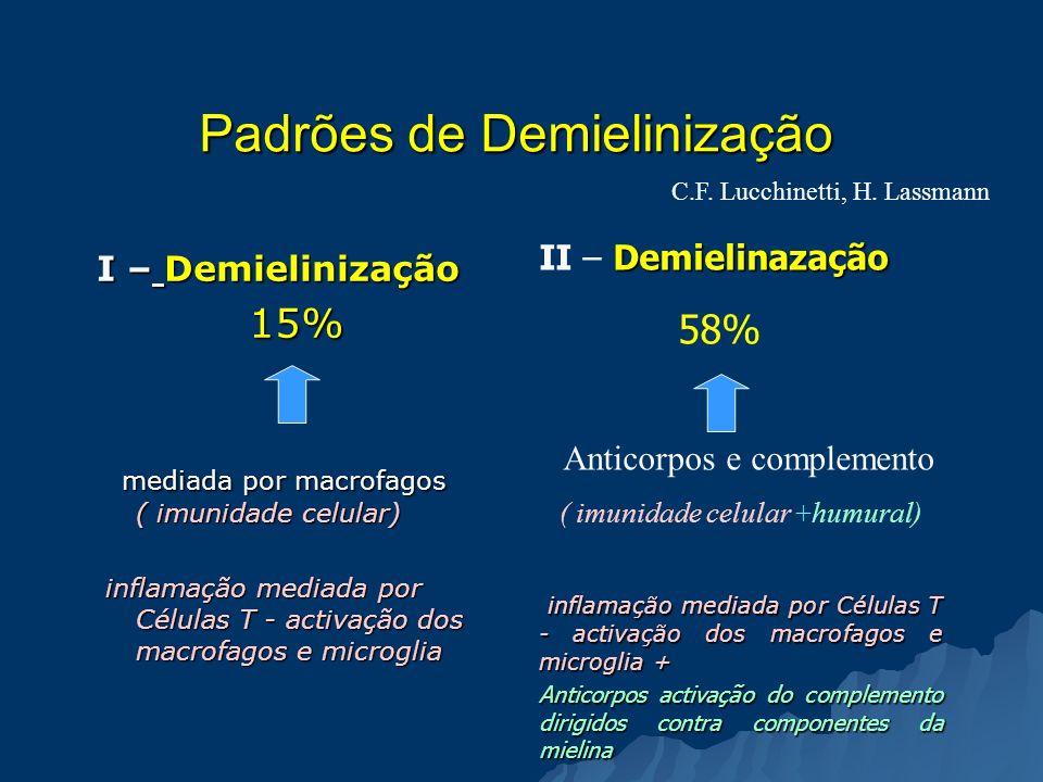 Padrões de Demielinização I – Demielinização 15% mediada por macrofagos ( imunidade celular) mediada por macrofagos ( imunidade celular) inflamação me