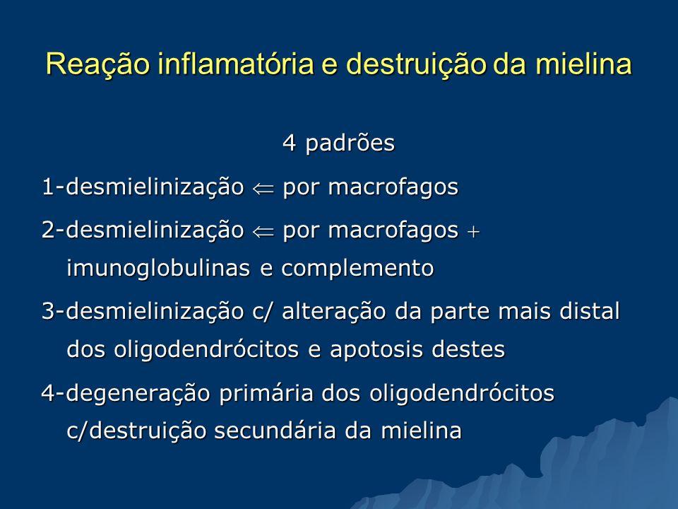 Reação inflamatória e destruição da mielina 4 padrões 1-desmielinização por macrofagos 2-desmielinização por macrofagos imunoglobulinas e complemento