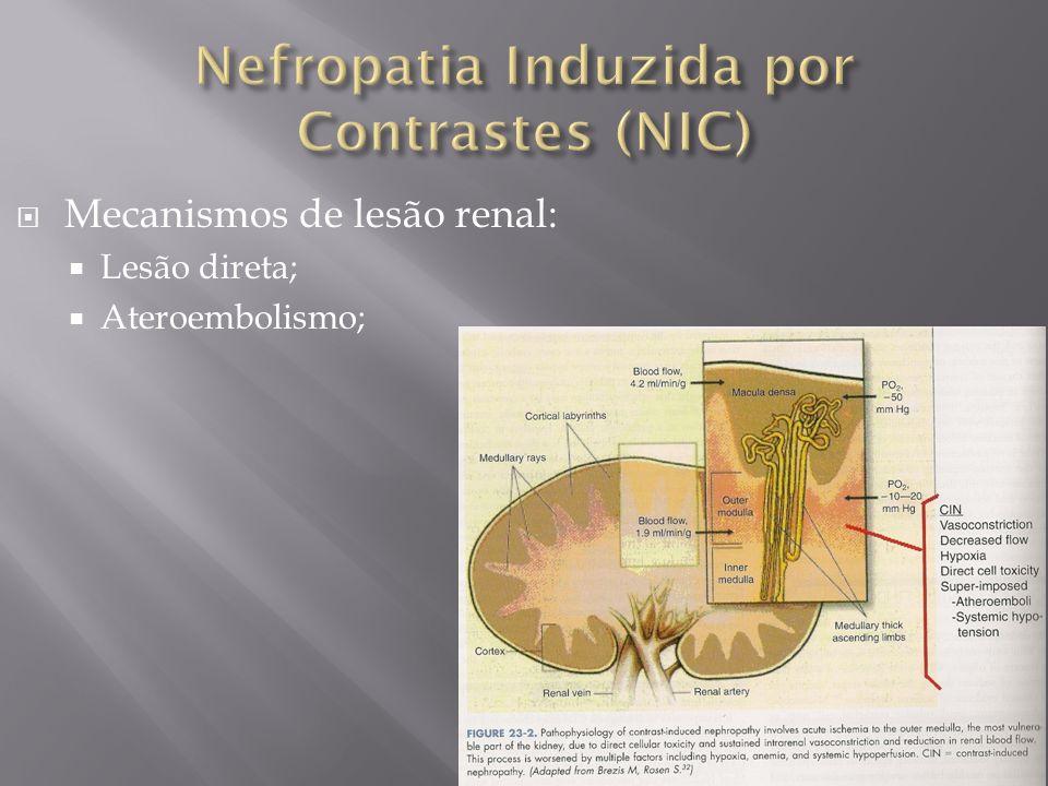 Mecanismos de lesão renal: Lesão direta; Ateroembolismo;