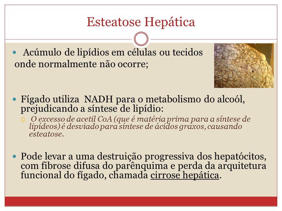 Esteatose Hepática Acúmulo de lipídios em células ou tecidos onde normalmente não ocorre; Fígado utiliza NADH para o metabolismo do alcoól, prejudicando a síntese de lipídio: O excesso de acetil CoA (que é matéria prima para a síntese de lipídeos) é desviado para síntese de ácidos graxos, causando esteatose.
