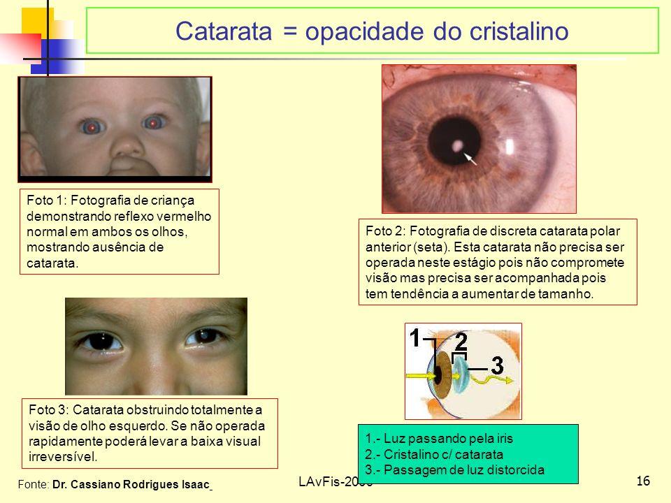 16 LAvFis-2009 Catarata = opacidade do cristalino Foto 1: Fotografia de criança demonstrando reflexo vermelho normal em ambos os olhos, mostrando ausência de catarata.