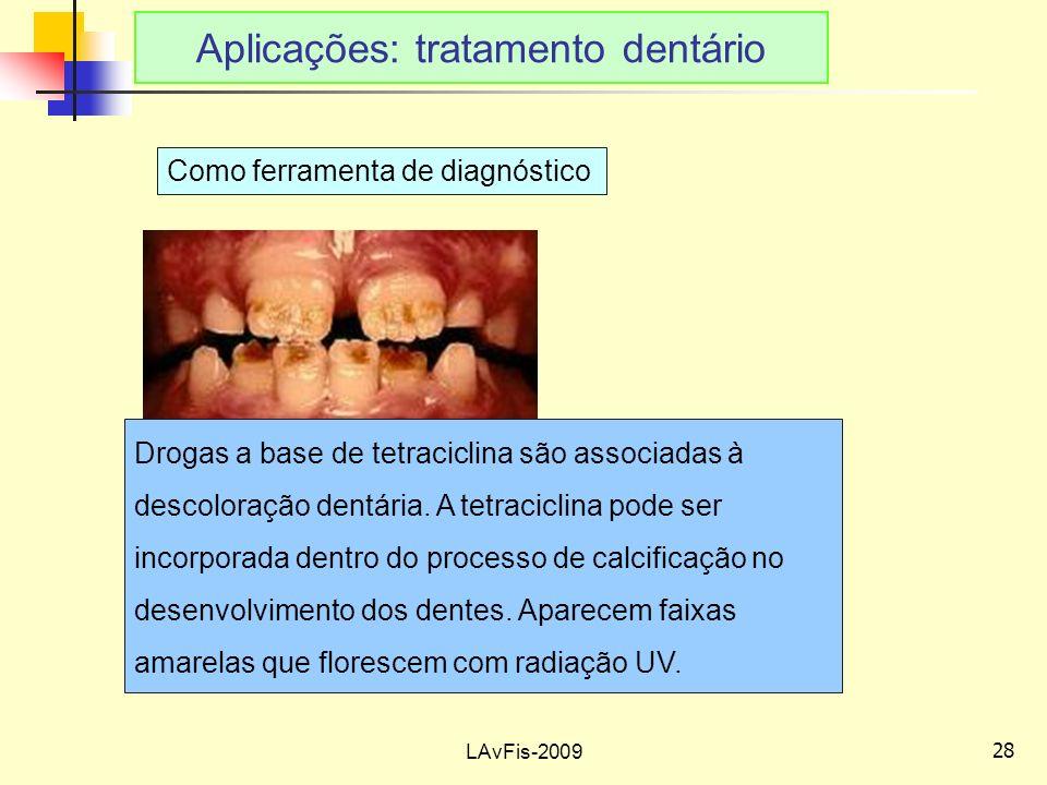 28 LAvFis-2009 Aplicações: tratamento dentário Como ferramenta de diagnóstico Drogas a base de tetraciclina são associadas à descoloração dentária.