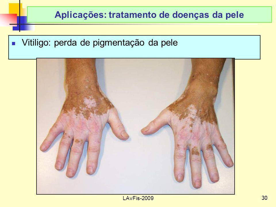 30 LAvFis-2009 Aplicações: tratamento de doenças da pele Vitiligo: perda de pigmentação da pele