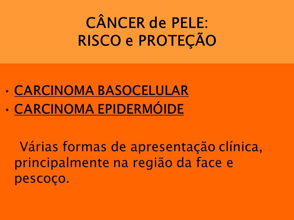CÂNCER de PELE: RISCO e PROTEÇÃO CARCINOMA BASOCELULAR CARCINOMA EPIDERMÓIDE Várias formas de apresentação clínica, principalmente na região da face e