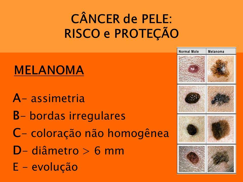 CÂNCER de PELE: RISCO e PROTEÇÃO MELANOMA A - assimetria B - bordas irregulares C - coloração não homogênea D - diâmetro > 6 mm E - evolução