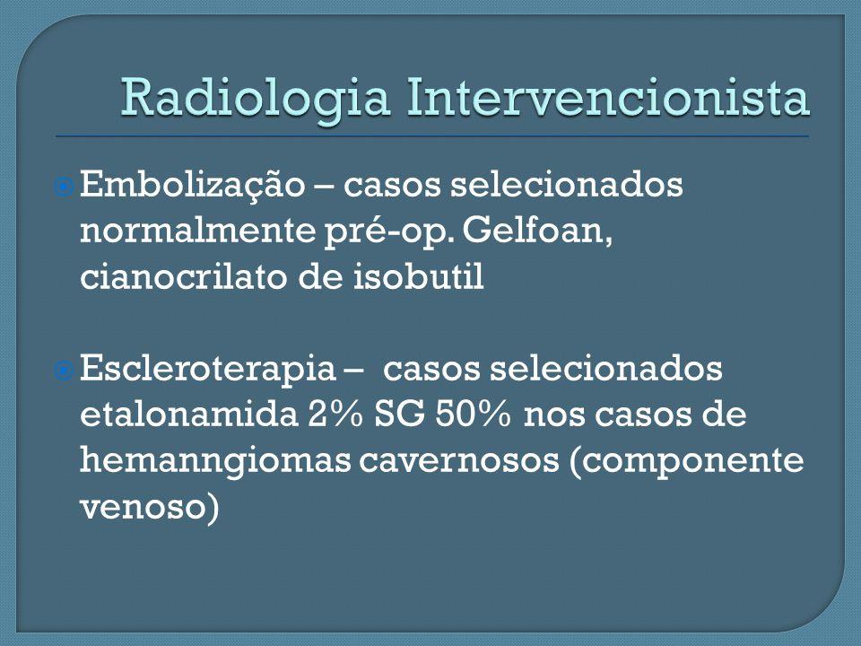 Embolização – casos selecionados normalmente pré-op. Gelfoan, cianocrilato de isobutil Escleroterapia – casos selecionados etalonamida 2% SG 50% nos c