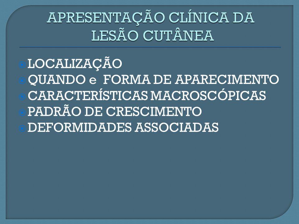 LOCALIZAÇÃO QUANDO e FORMA DE APARECIMENTO CARACTERÍSTICAS MACROSCÓPICAS PADRÃO DE CRESCIMENTO DEFORMIDADES ASSOCIADAS