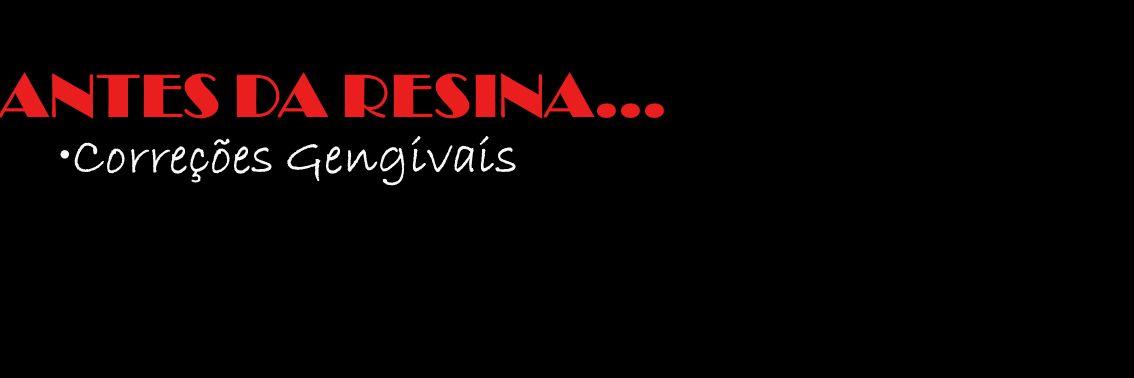 Correções Gengivais ANTES DA RESINA...