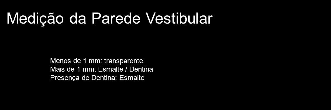 Medição da Parede Vestibular Menos de 1 mm: transparente Mais de 1 mm: Esmalte / Dentina Presença de Dentina: Esmalte