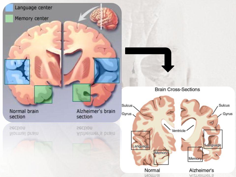 Fisiopatologia Caracteriza-se por uma atrofia acentuada do córtex cerebral Perda de neurônios corticais e subcorticais.