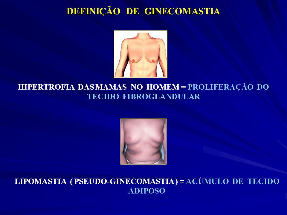 DEFINIÇÃO DE GINECOMASTIA HIPERTROFIA DAS MAMAS NO HOMEM = PROLIFERAÇÃO DO TECIDO FIBROGLANDULAR LIPOMASTIA ( PSEUDO-GINECOMASTIA ) = ACÚMULO DE TECID