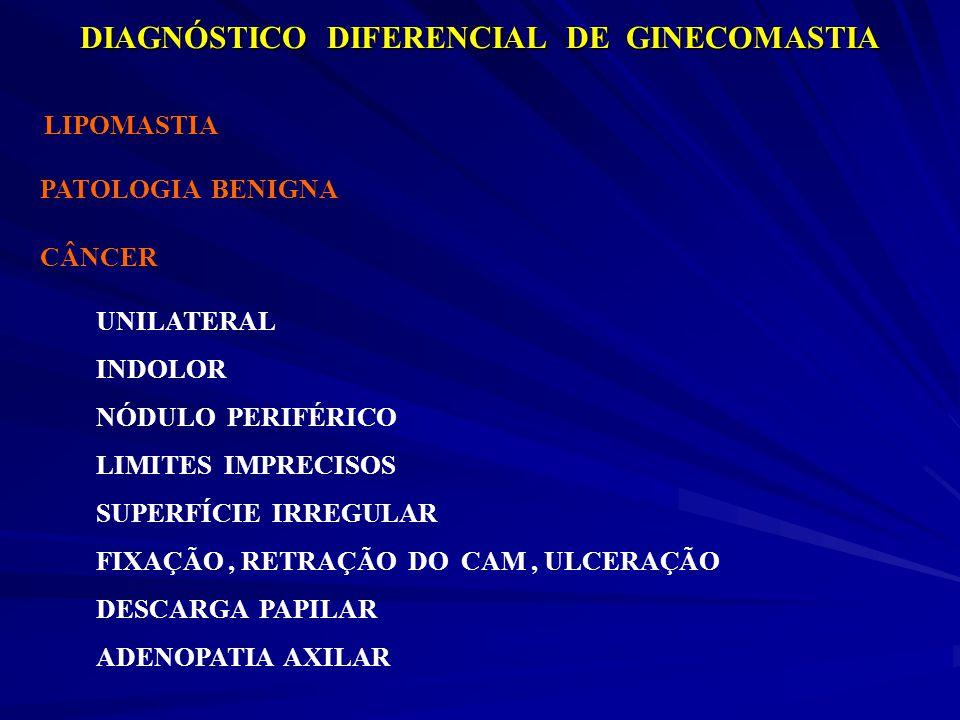 DIAGNÓSTICO DIFERENCIAL DE GINECOMASTIA LIPOMASTIA PATOLOGIA BENIGNA CÂNCER UNILATERAL INDOLOR NÓDULO PERIFÉRICO LIMITES IMPRECISOS SUPERFÍCIE IRREGUL
