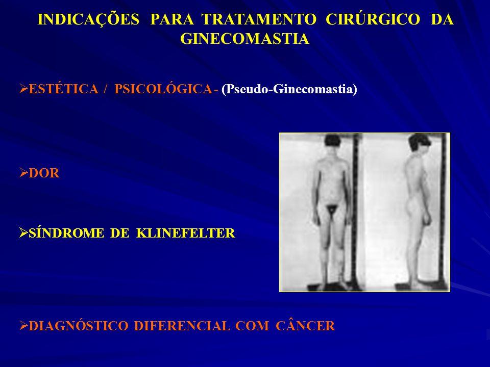 INDICAÇÕES PARA TRATAMENTO CIRÚRGICO DA GINECOMASTIA ESTÉTICA / PSICOLÓGICA - (Pseudo-Ginecomastia) DOR SÍNDROME DE KLINEFELTER DIAGNÓSTICO DIFERENCIA
