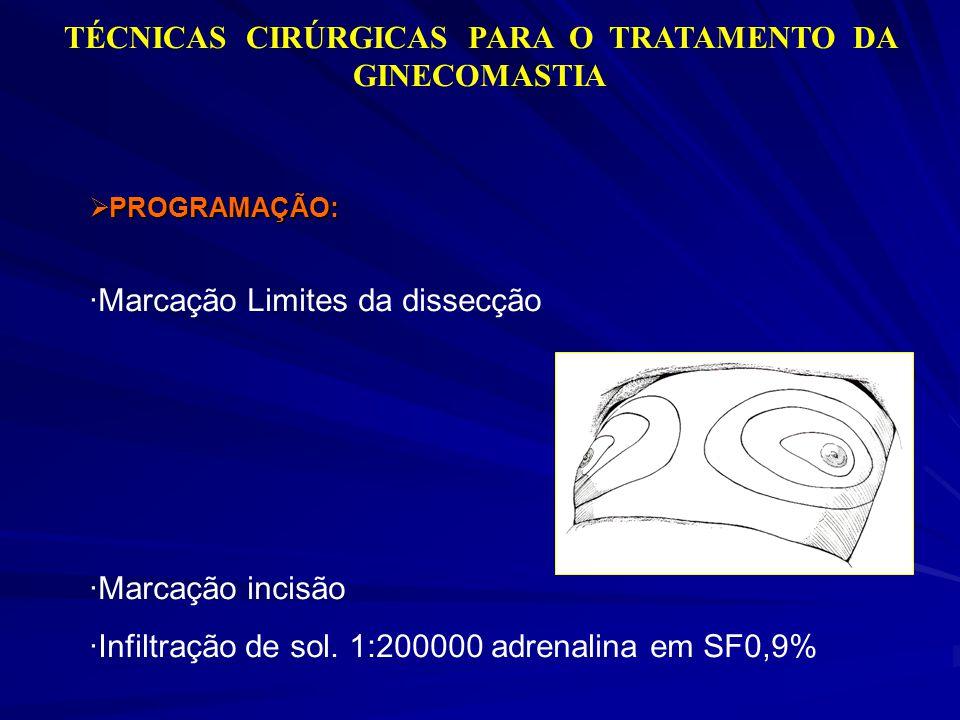 TÉCNICAS CIRÚRGICAS PARA O TRATAMENTO DA GINECOMASTIA PROGRAMAÇÃO: PROGRAMAÇÃO: ·Marcação Limites da dissecção ·Marcação incisão ·Infiltração de sol.