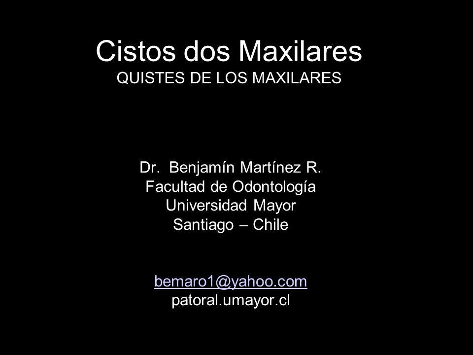 Cistos dos Maxilares QUISTES DE LOS MAXILARES Dr. Benjamín Martínez R. Facultad de Odontología Universidad Mayor Santiago – Chile bemaro1@yahoo.com pa