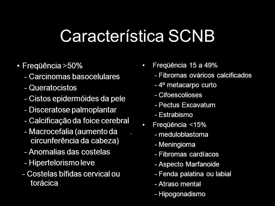 Característica SCNB Freqüência >50% - Carcinomas basocelulares - Queratocistos - Cistos epidermóides da pele - Disceratose palmoplantar - Calcificação