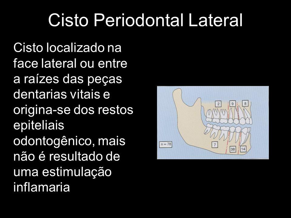 Cisto Periodontal Lateral Cisto localizado na face lateral ou entre a raízes das peças dentarias vitais e origina-se dos restos epiteliais odontogênic