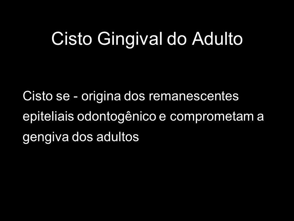 Cisto Gingival do Adulto Cisto se - origina dos remanescentes epiteliais odontogênico e comprometam a gengiva dos adultos