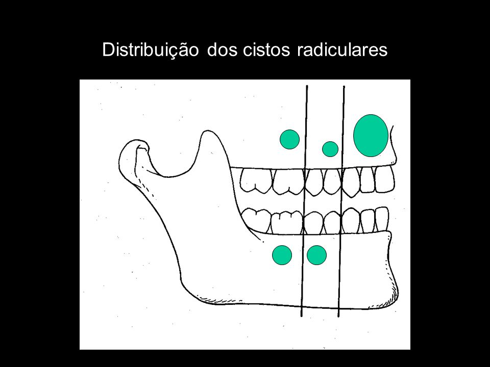 Cisto Periodontal Lateral Cisto localizado na face lateral ou entre a raízes das peças dentarias vitais e origina-se dos restos epiteliais odontogênico, mais não é resultado de uma estimulação inflamaria
