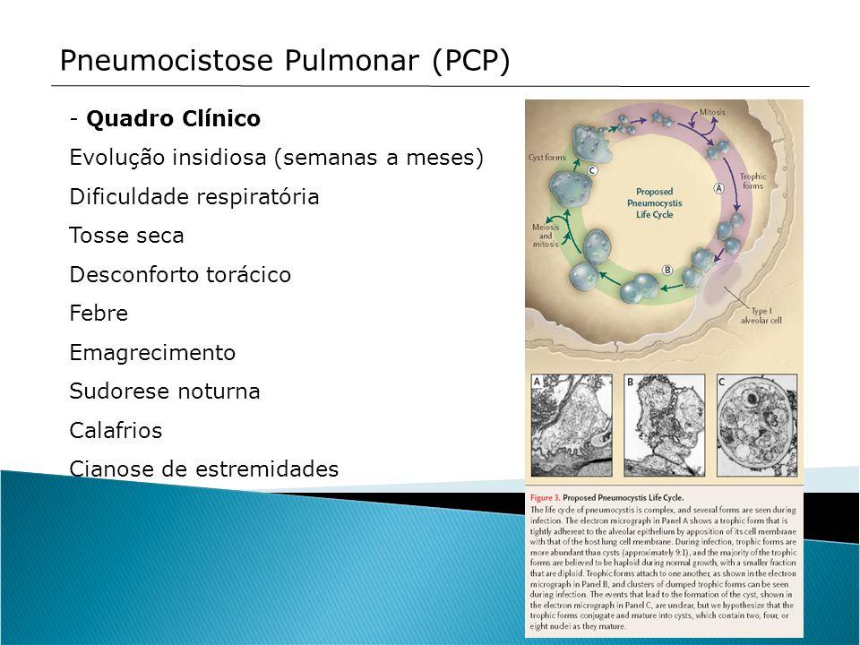 Pneumocistose Pulmonar (PCP) - Quadro Clínico Evolução insidiosa (semanas a meses) Dificuldade respiratória Tosse seca Desconforto torácico Febre Emag