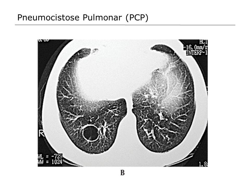 Pneumocistose Pulmonar (PCP)