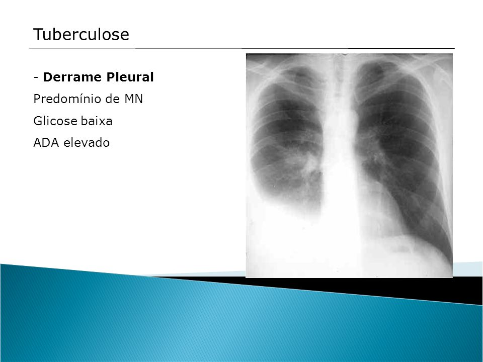 Tuberculose - Derrame Pleural Predomínio de MN Glicose baixa ADA elevado