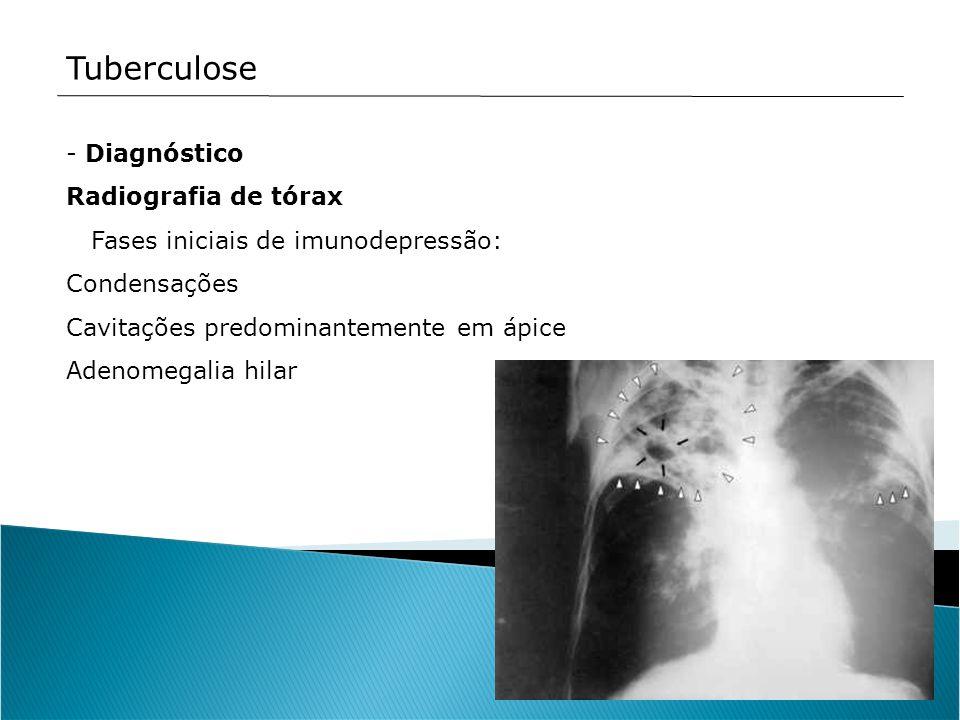 Tuberculose - Diagnóstico Radiografia de tórax Fases iniciais de imunodepressão: Condensações Cavitações predominantemente em ápice Adenomegalia hilar