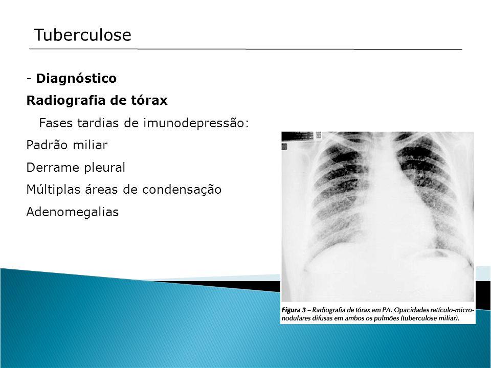 - Diagnóstico Radiografia de tórax Fases tardias de imunodepressão: Padrão miliar Derrame pleural Múltiplas áreas de condensação Adenomegalias