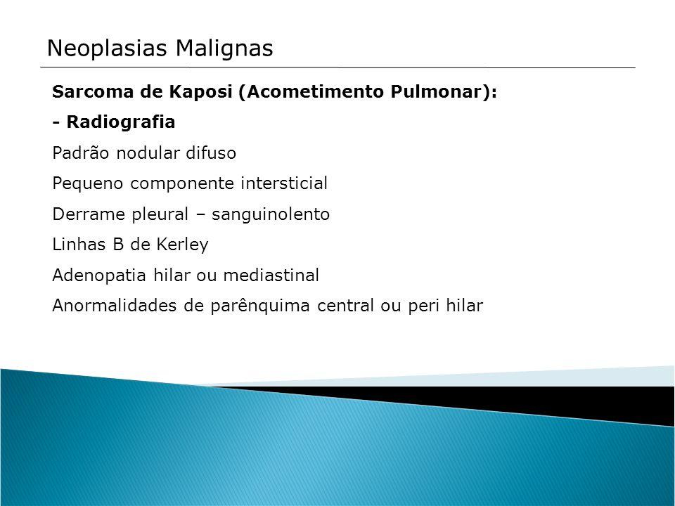Neoplasias Malignas Sarcoma de Kaposi (Acometimento Pulmonar): - Radiografia Padrão nodular difuso Pequeno componente intersticial Derrame pleural – s